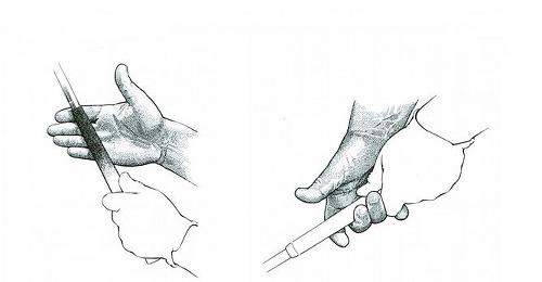 [방아쇠수지] 골프 후 딸각거리면서 아픈 손가락- 봉침, 한약으로 완쾌